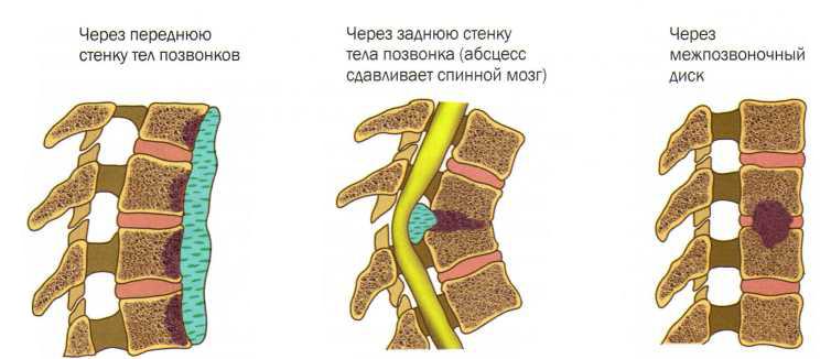 Туберкулезный спондилит: есть ли шанс на выздоровление и предупреждение коварной инфекции?