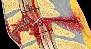 Миелопатия поясничного отдела: как не запустить болезнь до необратимых последствий?