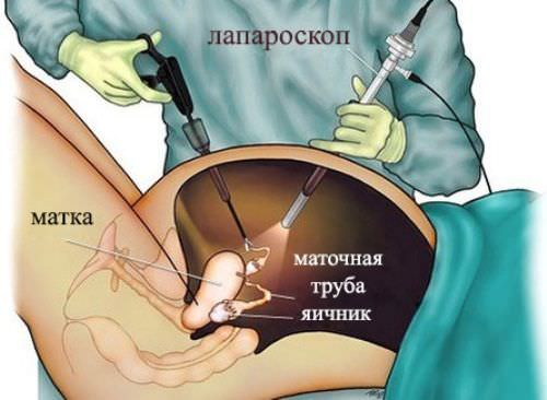 Возможно ли лечение эндометриоидной кисты яичника без операции