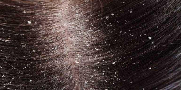 Отслаивающиеся чешуйки на коже головы