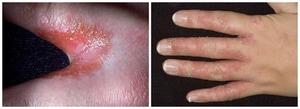 Чем лечить грибок пальцев рук