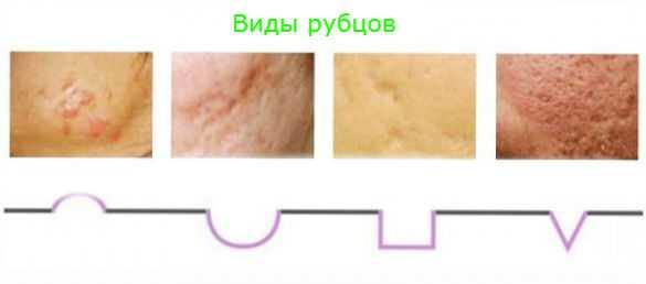 рубцы лечение