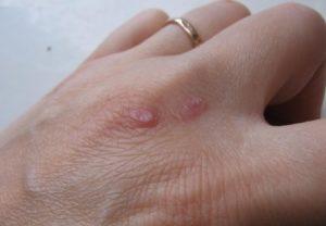 Как эффективно лечить бородавки на руках