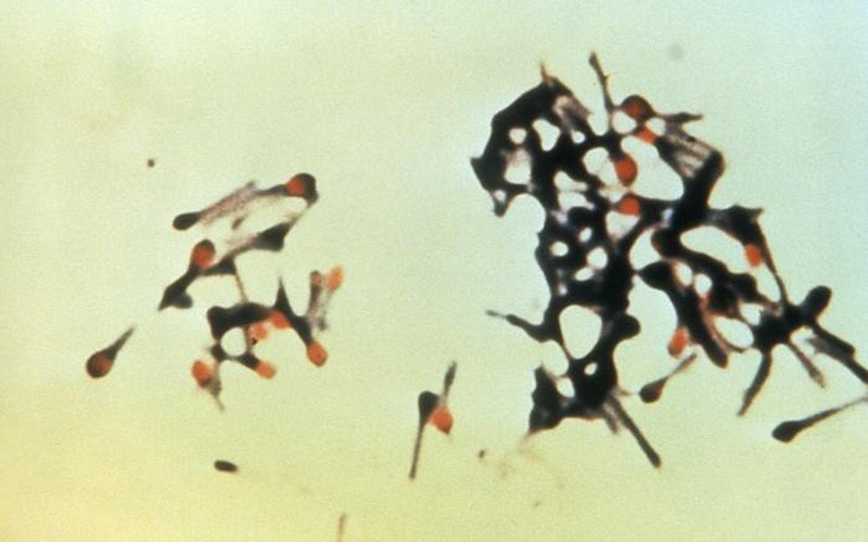 Столбнячная бактерия
