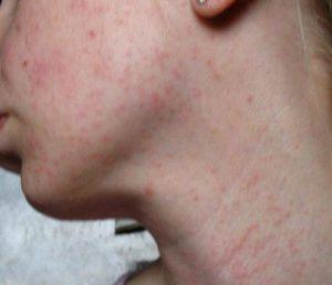 Как лечить высыпания на коже