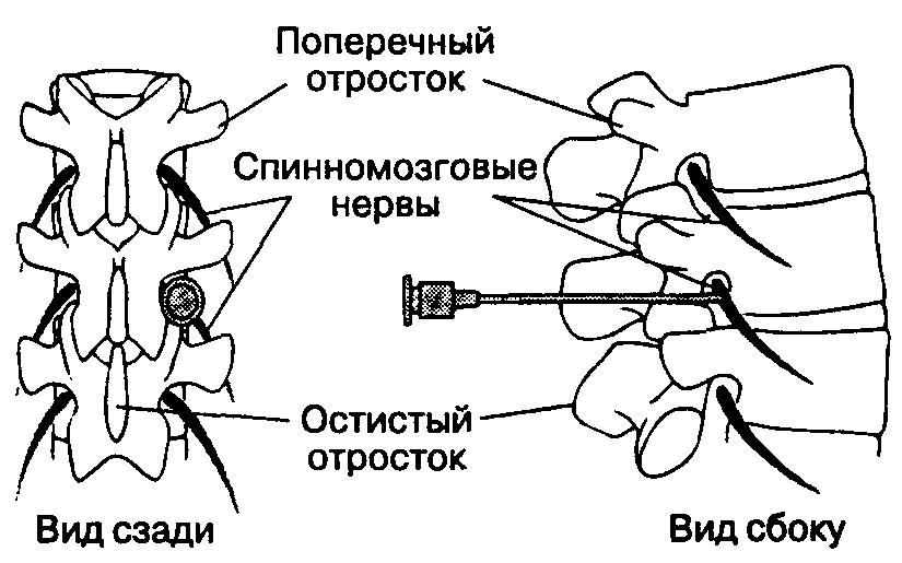 Обзор эффективных уколов при грыже позвоночника поясничного отдела