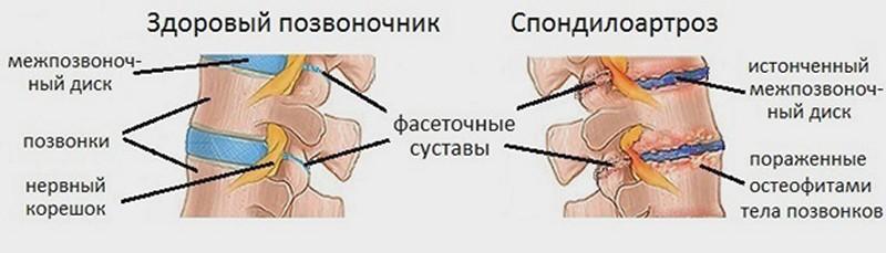 Спондилоартроз шейного отдела позвоночника: каковы последствия деформации и сращивания фасеточного сустава?