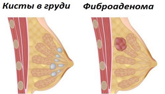 Доброкачественные опухоли