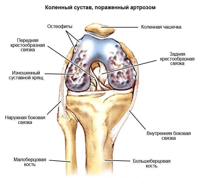 Клиника артроза