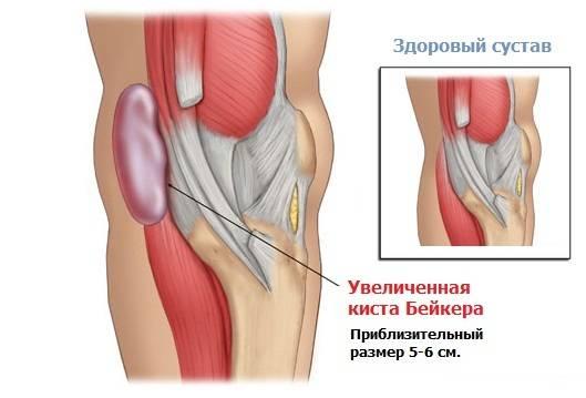 Патология коленного сустава