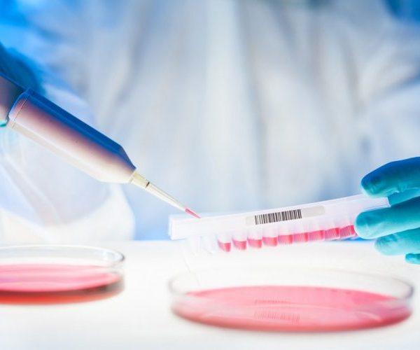 Как определить свободные андрогены с помощью индекса