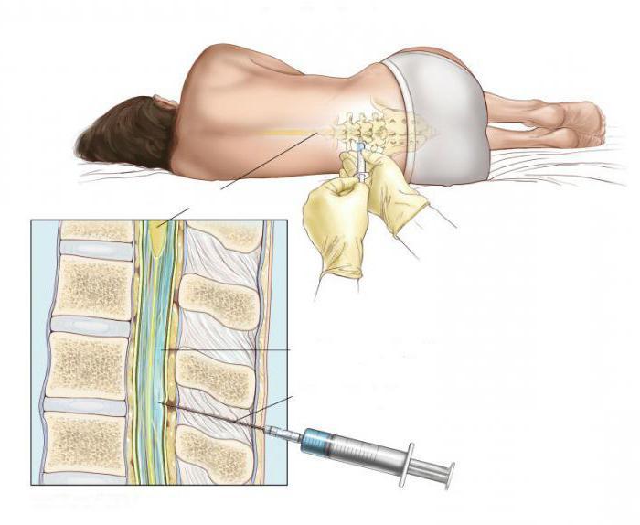 Эпидуралка в спину