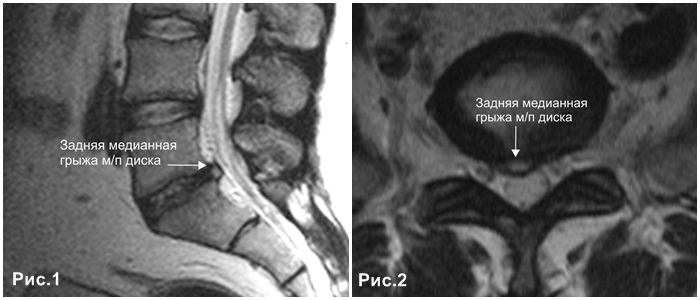 Повреждение спинномозгового канала или медиальная грыжа диска: что это такое? Значимость незамедлительного лечения