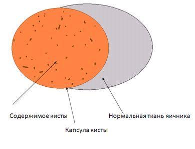 Что такое ретенционная киста яичника