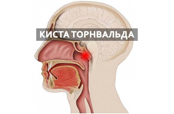 Симптомы и лечение кисты Торнвальда