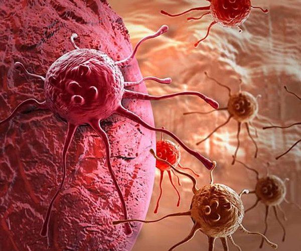 Возможен ли положительный прогноз при раке яичек
