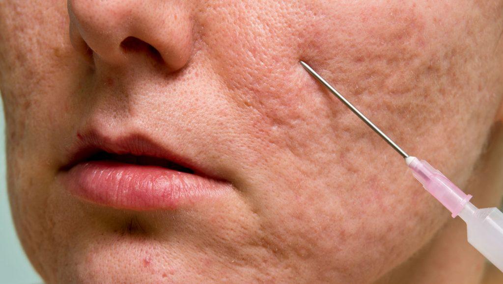 как избавится от рубцов на лице