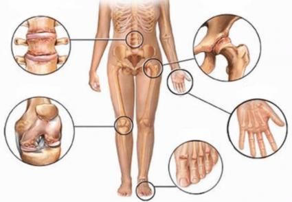 От недуга страдают несколько органов одновременно