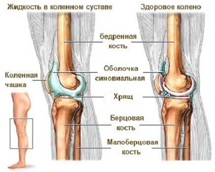 Большое количество жидкости в колене