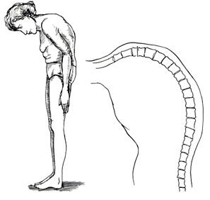 Деформация межпозвонковых суставов или спондилоартрит: как не допустить тяжелых последствий?