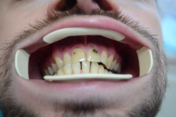 Кариес на передних зубах 1