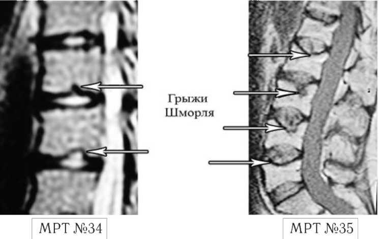Снимки МРТ