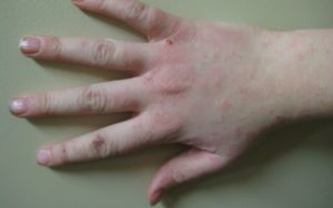 лечить зудящий дерматит
