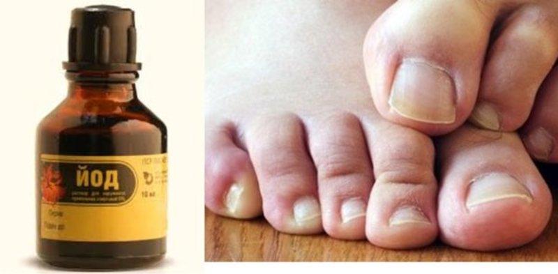 Как легко избавиться от грибка ногтей