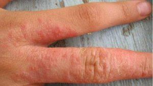 лечение холодового дерматита