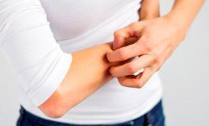 Заразен или нет дерматит