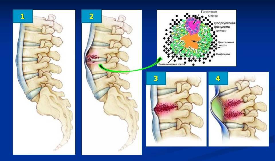 Туберкулез позвоночника: последствия инфекционного поражения костей