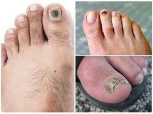 Виды грибков на ногах