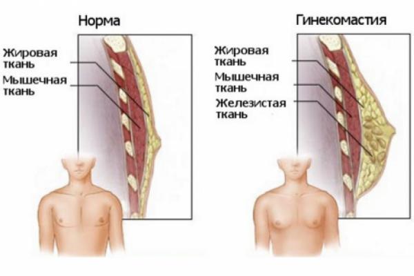Как вылечить ложную гинекомастию