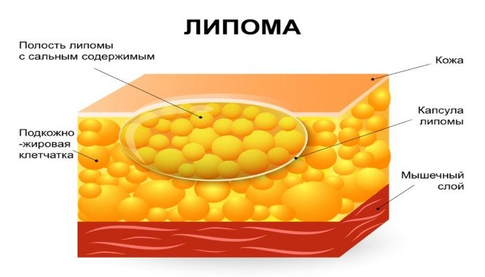 Лимопа