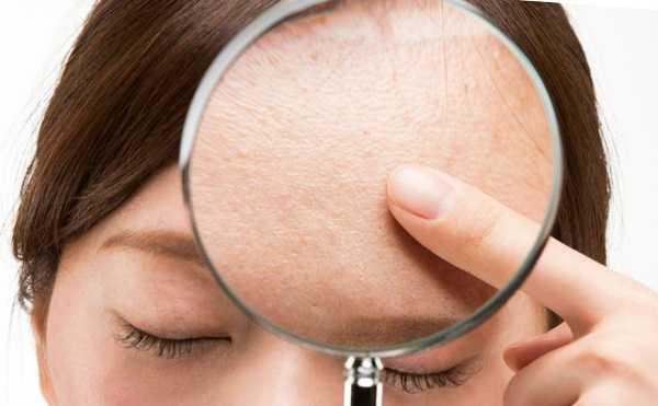 Почему у женщин расширяются поры на лице