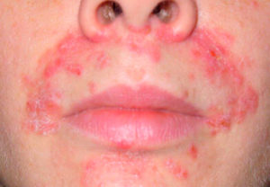 лечение стероидного дерматита