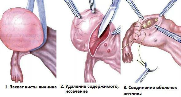 Как удаляют кисту яичника хирургические способы лечения образований