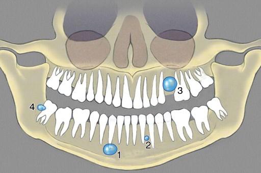 Методы лечения радикулярных кист на верхней и нижней челюстях