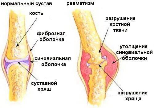Патологические процессы сустава