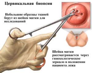 лечение папилломы матки