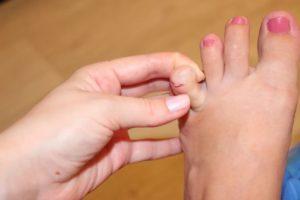 Чем может быть какой-то нарост на ногах между пальцами