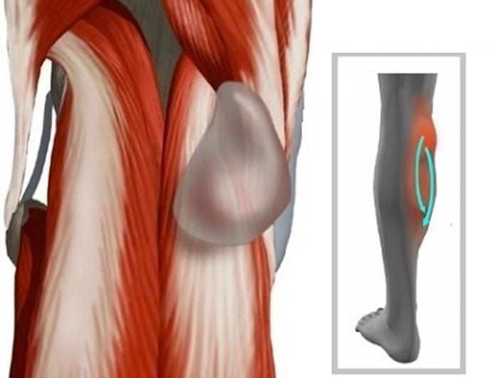 Какое лечение предусматривается при разрыве кисты Бейкера в коленном суставе