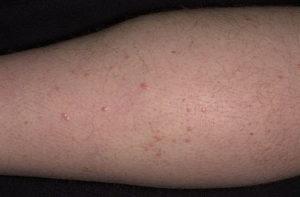 Как лечить высыпания на коже при болезни поджелудочной железы