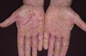лечение дисгидротической экземы кистей рук