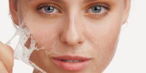 Как можно избавиться от шрамов на лице
