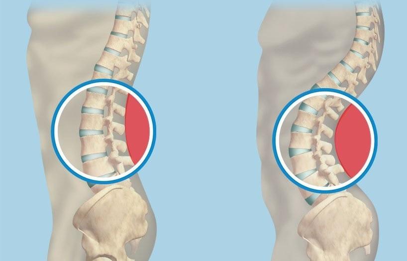 Как выглядит и проявляется гиполордоз поясничного и шейного отдела позвоночника? Методы лечения