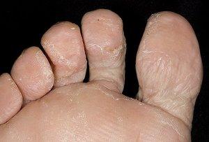 Грибок на ногтях и кожи