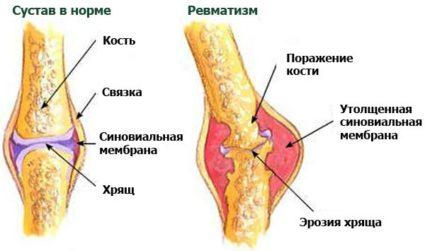Симптомы могу выражаться не только болью в суставах, но и общим недомоганием