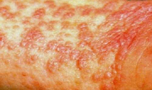 Красный плоский лишай: патогенез, симптомы и лечение