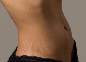 избавиться от растяжек на теле